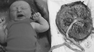 E51 - Why Im Not Celebrating Homebirth - Katherine Eden's Story